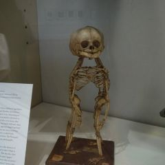 Mutter Museum User Photo